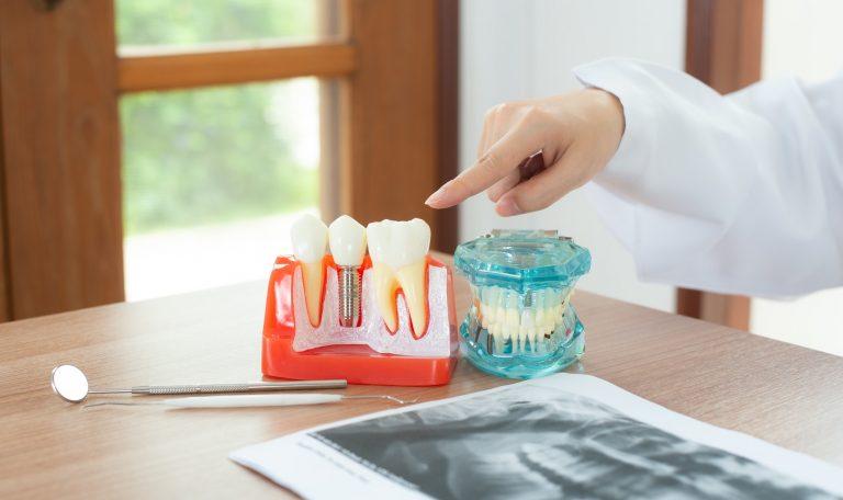 Dentista illustra un modello di impianto dentale