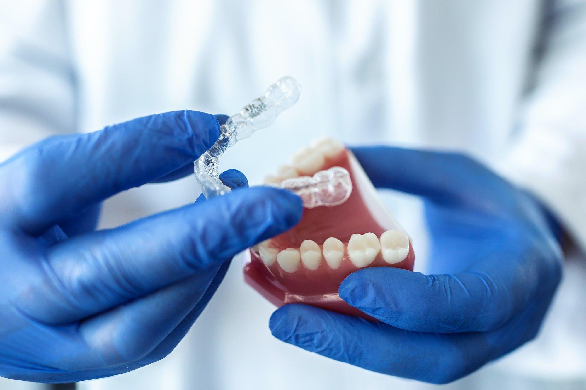 """Applicazione di apparecchio """"bite"""" utilizzato in gnatologia per la cura dei disturbi mandibolari"""