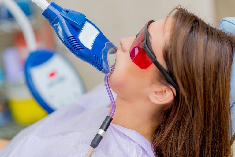 Sbiancamento dentale professionale con illuminante