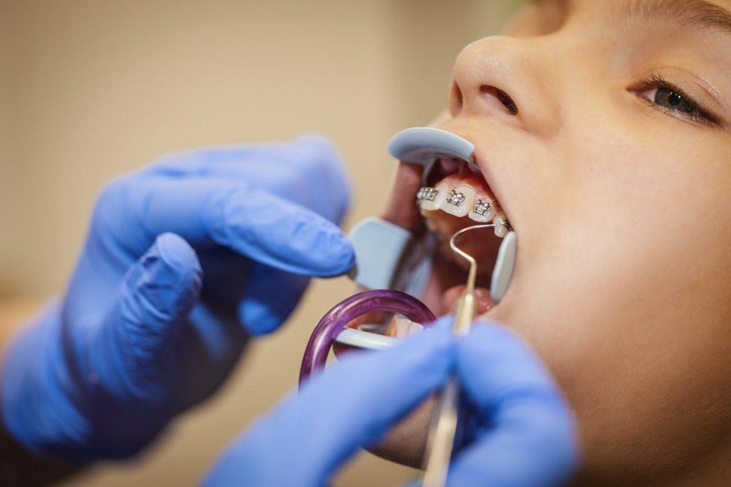 Ortodontista applica un apparecchio dentale fisso